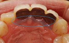 歯茎に沈着した写真1