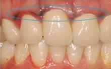 歯茎に沈着した写真2